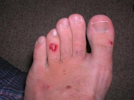 http://www.vagabondinglife.com/vagabonding-travel-injuries/