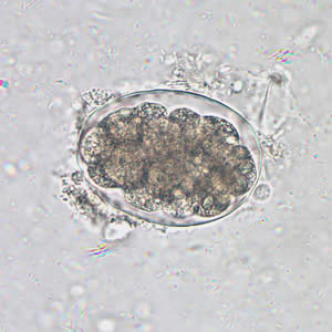Hookworm egg under 400x microscope, in fecal smear