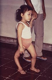 Polio in child