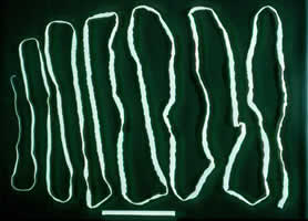 Tapeworm 4 meters long